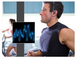 cardiac exercise treadmill stress testing